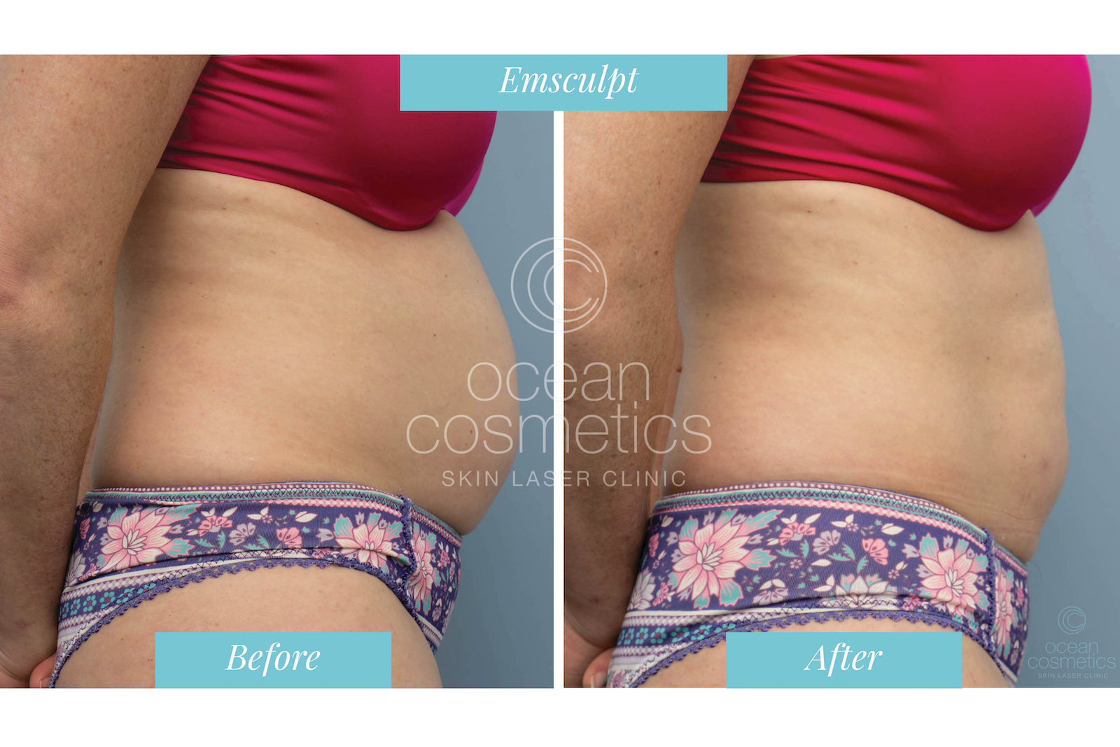 Ocean Cosmetics | Emsculpt Perth | Spa and Clinic | Dr Gina