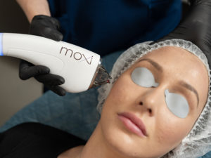 MOXI | MOXI Perth | Laser treatments perth | Laser skin treatments | Perth skin treatments | Ocean Cosmetics